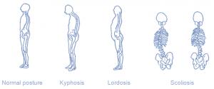 postural deviation